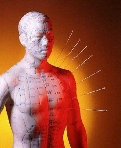 What can Acupuncture help with? | 101 Osteopathic Centre | GTA Healer