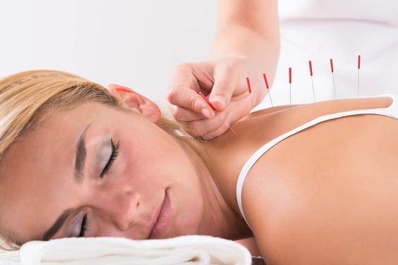 Acupuncture Therapy at GTA Healer